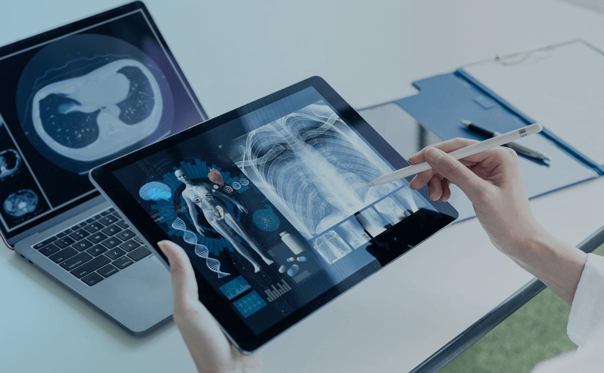 equipamentos eletrônicos com exames de imagem do paciente, evidenciando a medicina de precisão.
